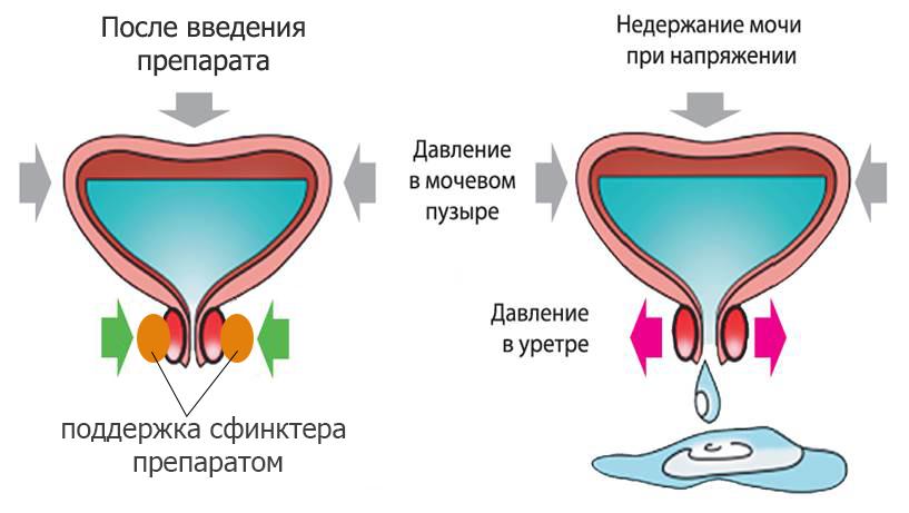 Сужение влагалища при помощи филеров с гиалуроновой кислотой